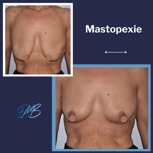 Mastopexie 3