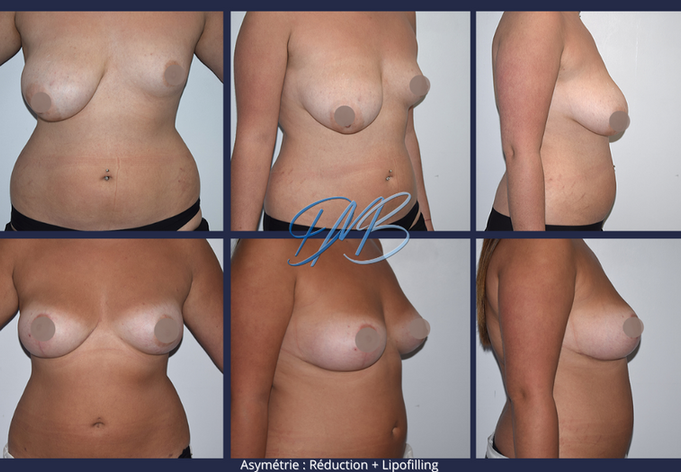 asymetrie + reduction mammaire + lipofilling