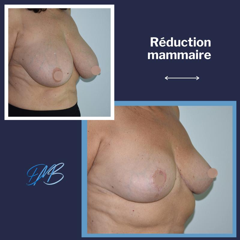 réduction mammaire 7