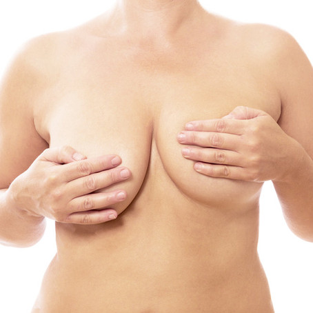 Malformation mammaire : Des techniques simples pour corriger un mal être profond