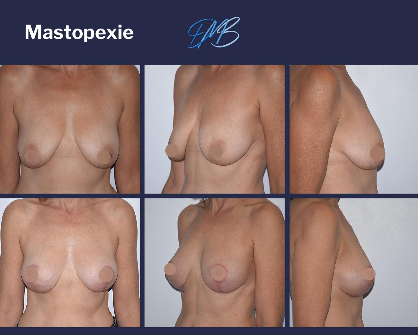 Mastopexie 5