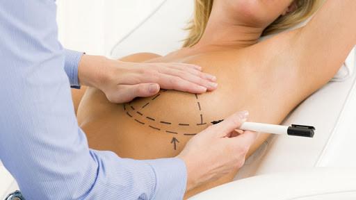 Lipofilling des seins : un acte vertueux ?