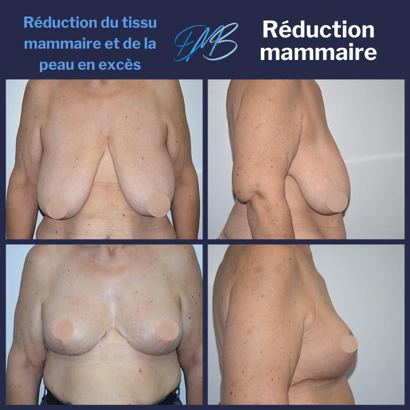 réduction mammaire 10