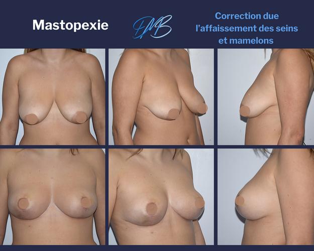 Mastopexie 4