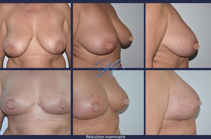 réduction mammaire 2.png