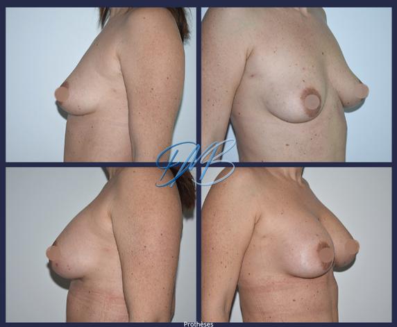 nice marc benatar aumgmentation mammaire