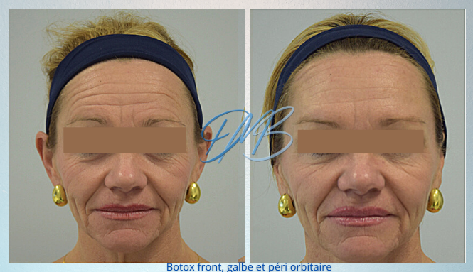 Botox front galbe peri orbitaire.png
