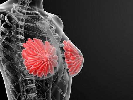 Prothèses mammaires et risque de cancer