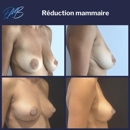 réduction mammaire 6