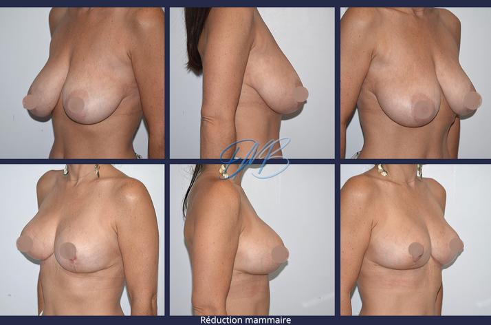 réduction mammaire 7.png