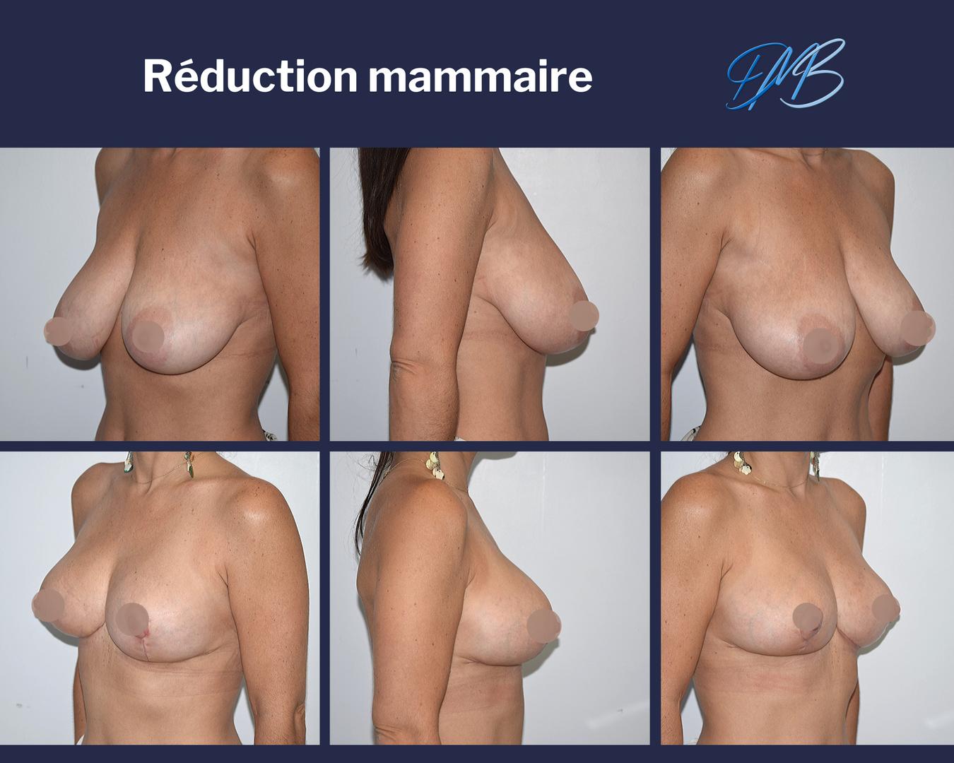 réduction mammaire 8
