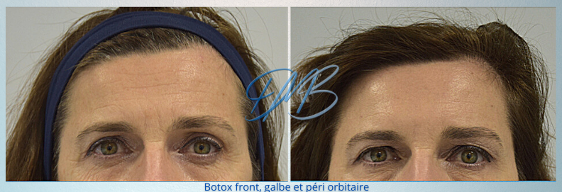 botox front gale peri orbitaire 2.png