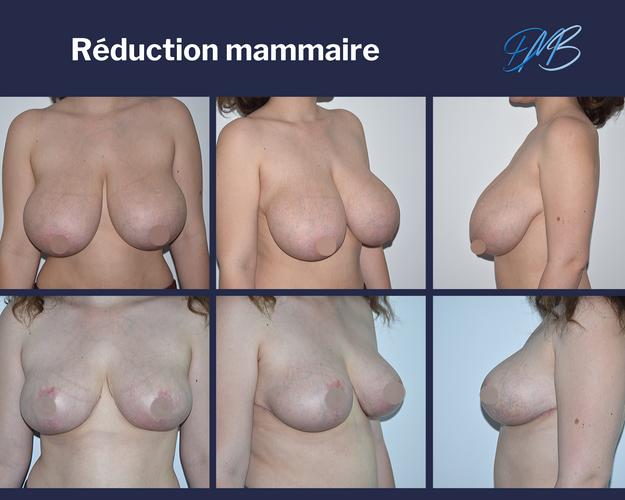 réduction mammaire 5