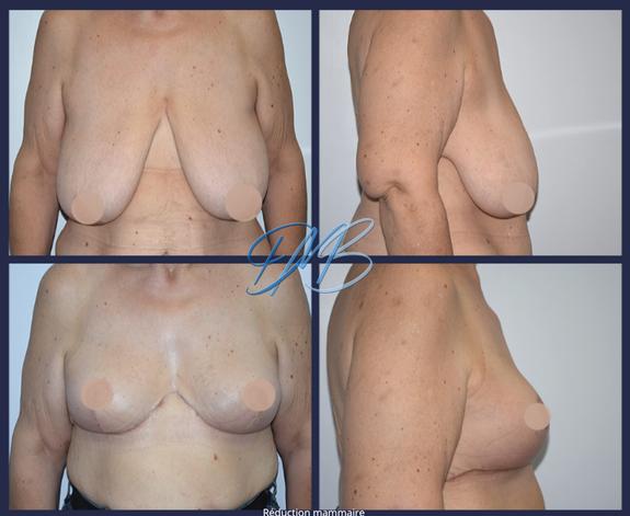 réduction mammaire 9.png