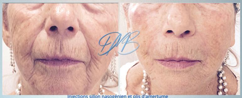 injections bas visage acide hyaluronique
