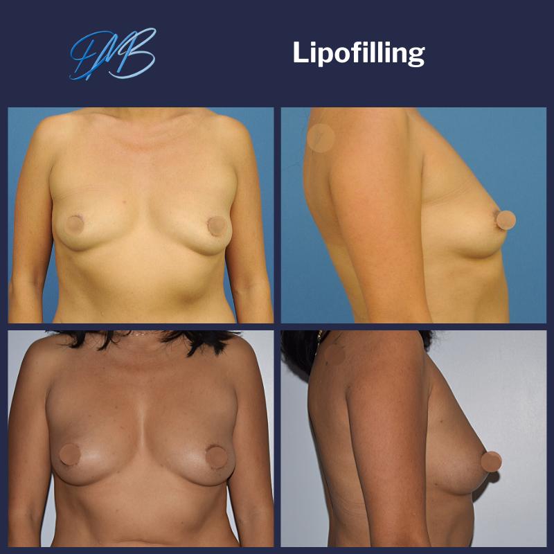 Augmentation mammaire par injection de graisse