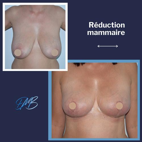 réduction mammaire 2