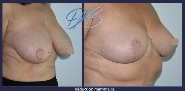 réduction mammaire 6.png