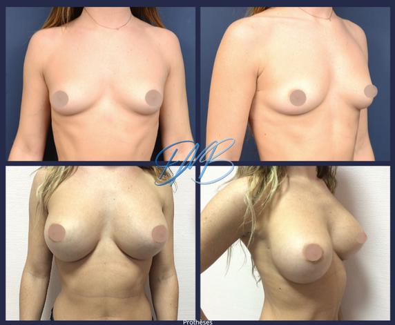 augmentation mammaire protheses nice ben