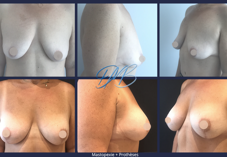 Mastopexie + Prothèses mammaires.png