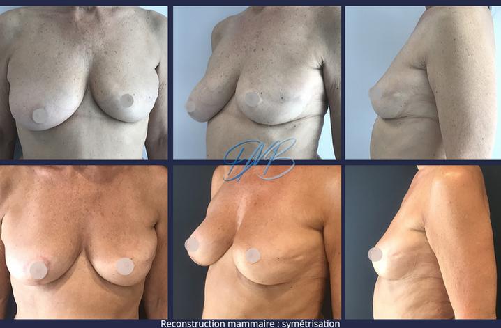 reconstruction mammaire symétrisation.pn