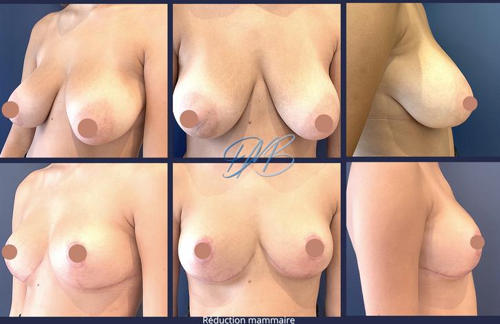Réduction mammaire docteur marc benatar