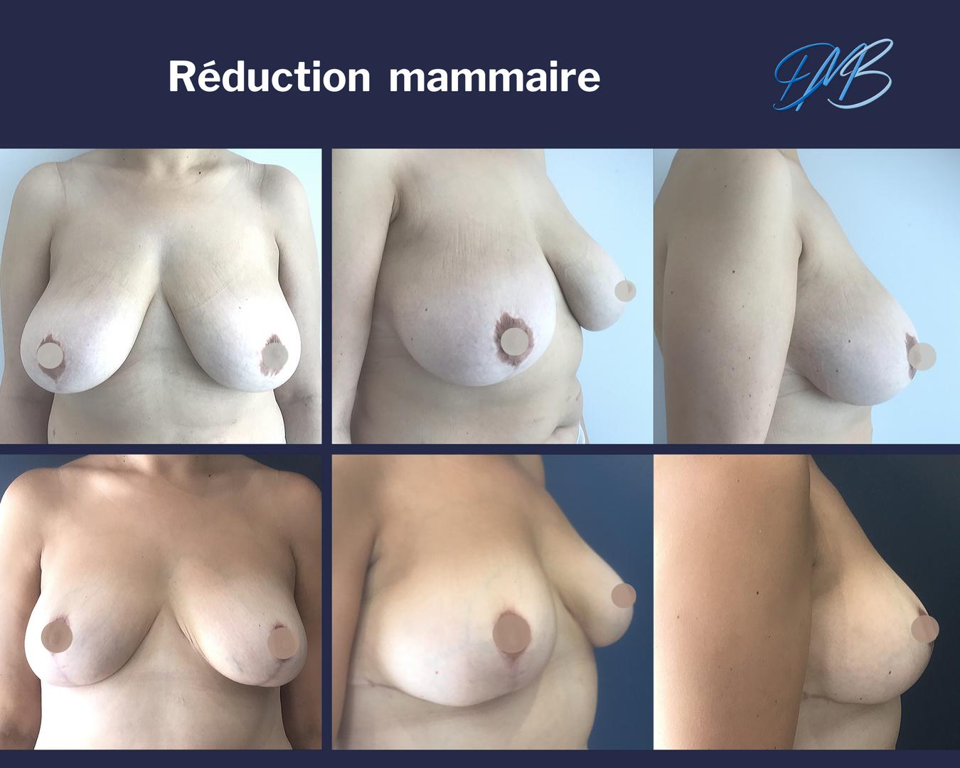 réduction mammaire 3