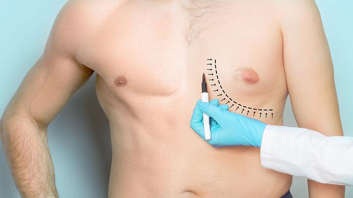 gynecomastie-marc-benatar.jpg