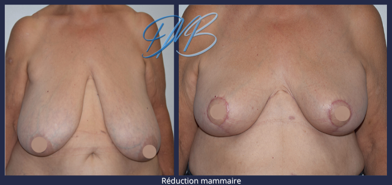 réduction mammaire 8.png