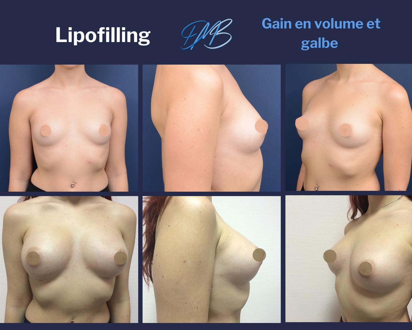Augmentation mammaire par injection de graisse 3