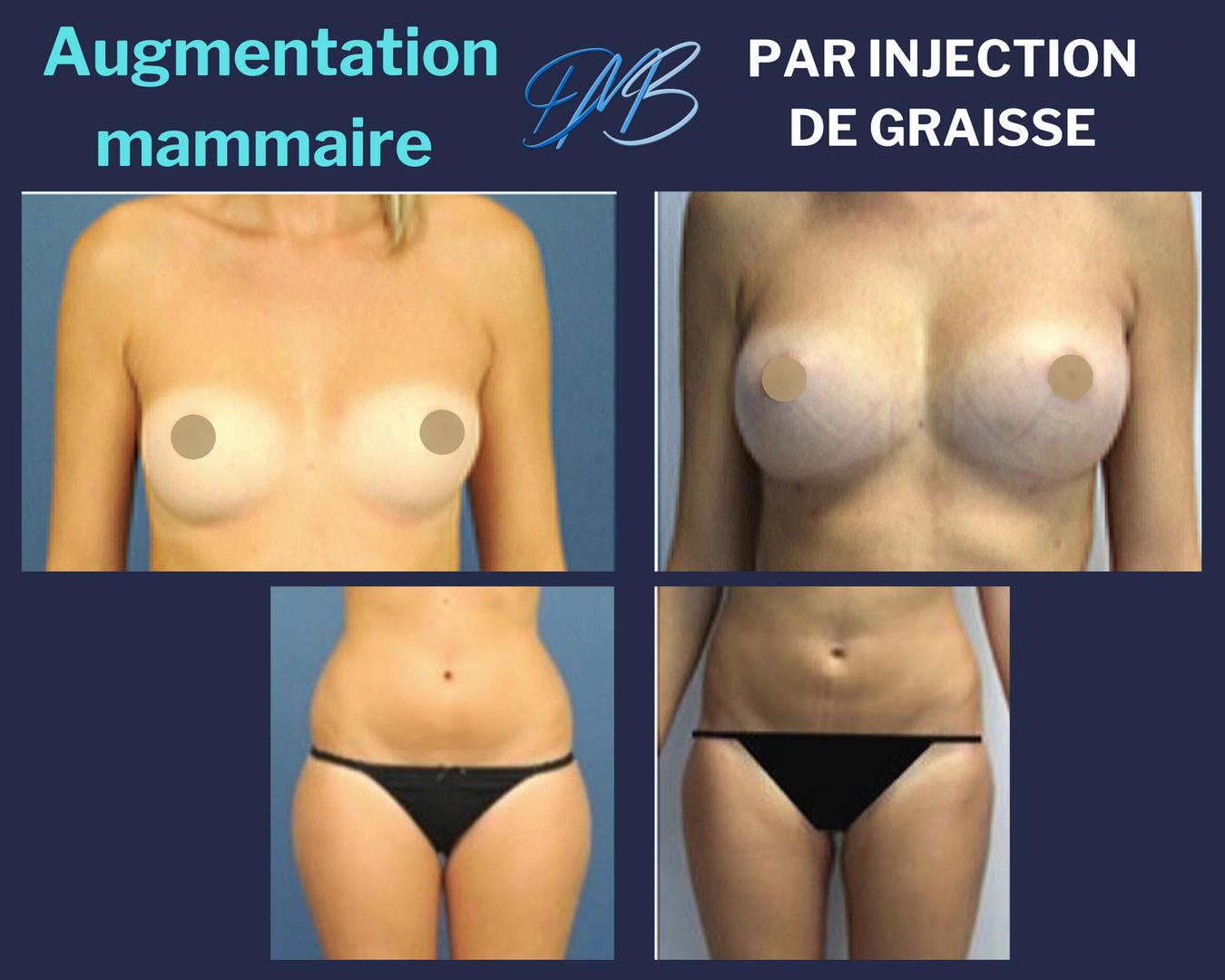 Augmentation mammaire par injection de graisse 2
