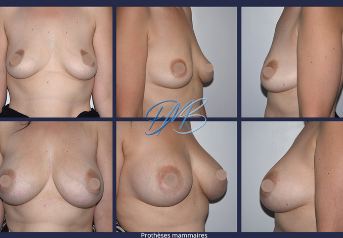 Prothèses mammaires.png