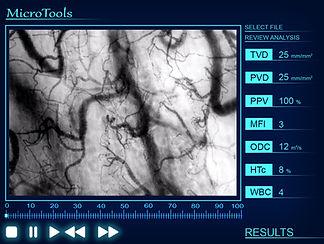 Microcirculation Analysis Software