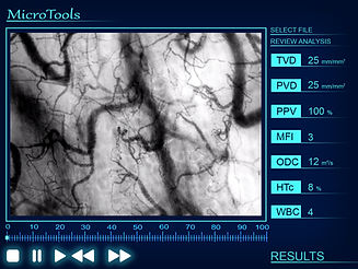 Microcirculation Analysis Software