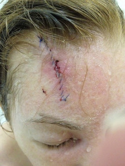 Basal Cell Skin Cancer Surgery Incision