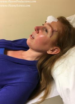 Pason, Redhead Actress, Producer, Basal Cell Skin Cancer MOHs Surgery
