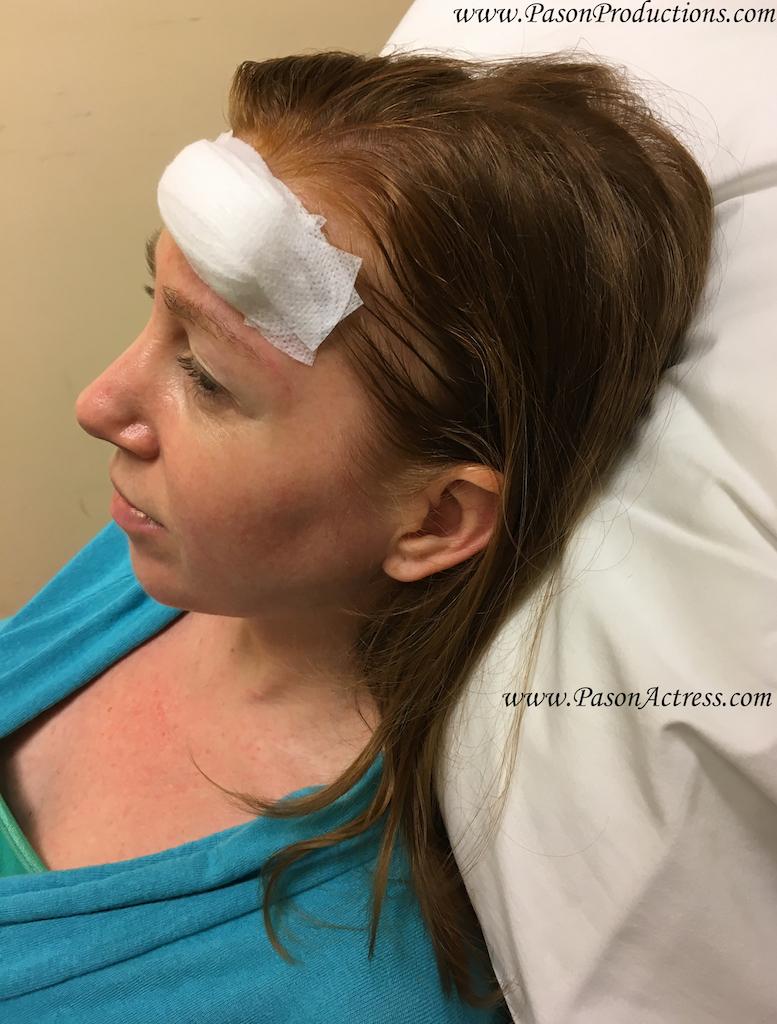 Pason Actress, Writer, Producer, MOHs, Basal Cell Skin Cancer Surgery, Bandage