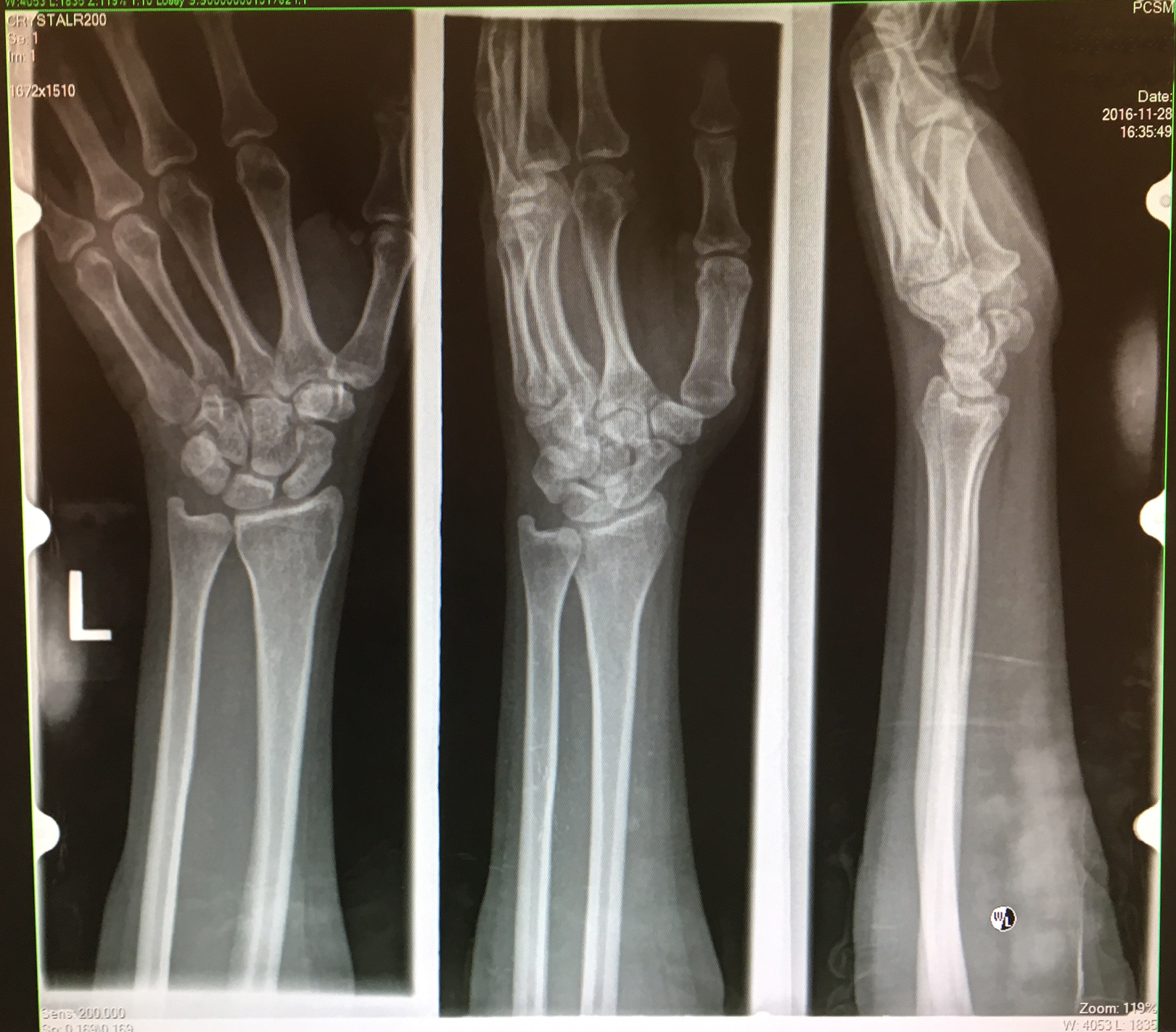Pason, X-Ray, Fractured Left Wrist