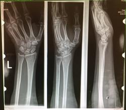 Pason, X-Ray, Fractured Left Wrist