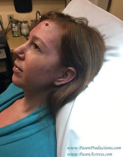 Pason Redhead Actress, Writer, Producer, Basal Cell Skin Cancer MOHs Surgery 2017