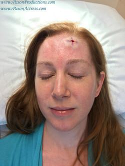 Pason Actress, Writer, Producer, Basal Cell Skin Cancer, MOHs Surgery