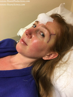 Pason Redhead Actress, Writer, Producer, Basal Cell Skin Cancer MOHs Surgery 2016