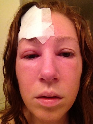 Basal Cell Skin Cancer forehead Surgery Swelling