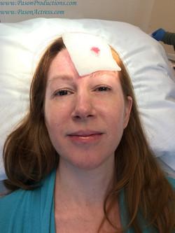 Pason, MOHs Skin Cancer Surgery, Actress, Writer, Producer