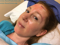 Pason, Redhead Actress, Writer, Producer, Basal Cell Skin Cancer MOHs Surgery, Dr. Greco