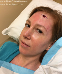 Pason Actress, Producer, Writer, Basal Cell Skin Cancer, MOHs Surgery