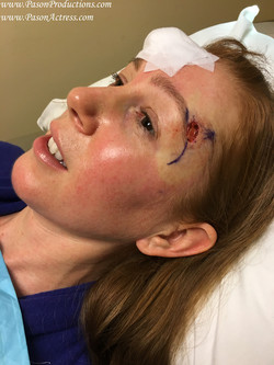 Pason, Actress, Producer, Basal Cell Skin Cancer, MOHs Surgery