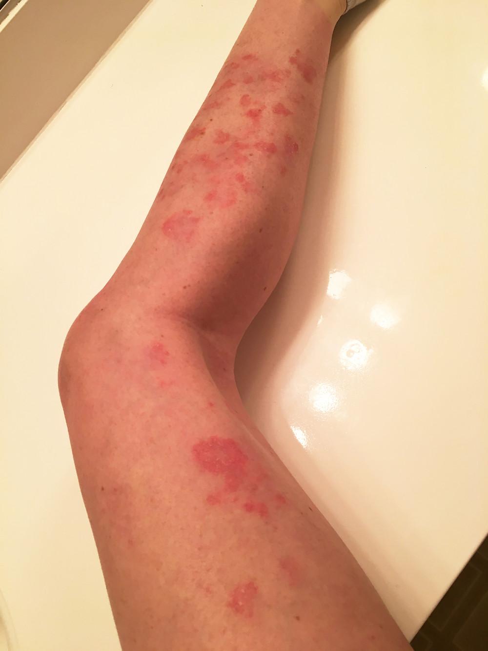 Trauma To Fitness, Pason, Skin Rash, Allergies, Eczema