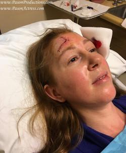 Pason, MOHs Skin Cancer Surgery, Actress, Producer