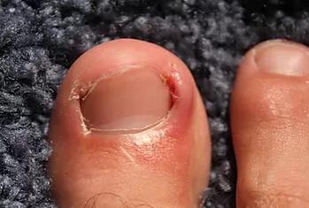 Zarostlé nehty – ošetření u podologa – Ortonyxie